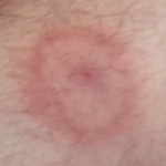 lyme disease rash pictures
