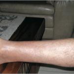 glucagonomas rash