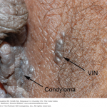 vulvar intraepithelial neoplasia pictures