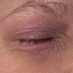 skin rash around eye