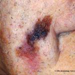 nodular melanoma size