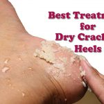 what causes cracked feet