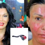 pictures of melasma