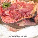 staphylococcus skin infections