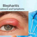 blepharitis picture
