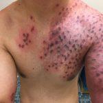 port wine stains birthmark