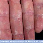fingers skin peeling