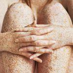 medical term for freckles