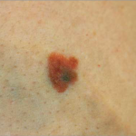 melanoma photograph