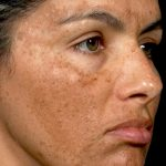 what causes melasma