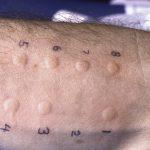 skin allergy testing