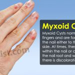 myxoid cyst treatment