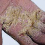scabies in people
