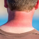 pictures of sunburn