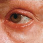 ocular rosacea symptoms