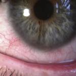rosacea in eye