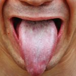 oral thrush treatment