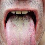 oral thrush pics