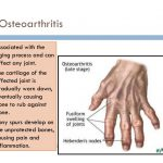 gouty arthritis pictures