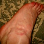 skin rash on foot