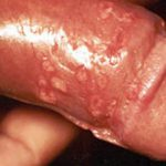 pictures of syphilis sores