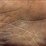 plme skin