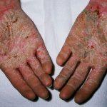 palmar plantar psoriasis