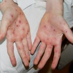 rashes on palms and soles