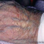 types of skin problem