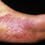 dermnet nz psoriasis
