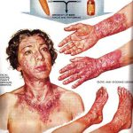 symptoms of pellagra