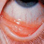chronic allergic conjunctivitis