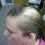 psoriasis hair loss