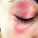 methylisothiazolinone allergy