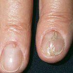 fingernail cracking