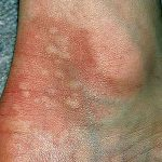poisonous plants rashes