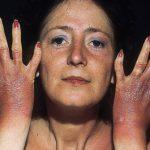 photosensitive dermatitis