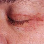 perioral dermatitis eyes
