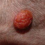 skin tumors