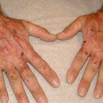 porphyria cutanea tarda pictures