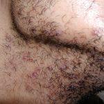 hair folliculitis treatment