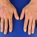 what is plaques psoriasis