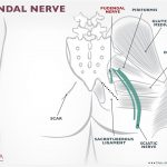 pudendal nerve damage