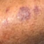 purple spot on skin