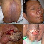 penile lesion pictures