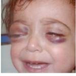 rashes around the eye