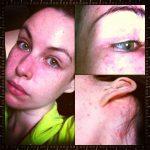 rash behind neck
