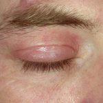 rash around eyes pictures