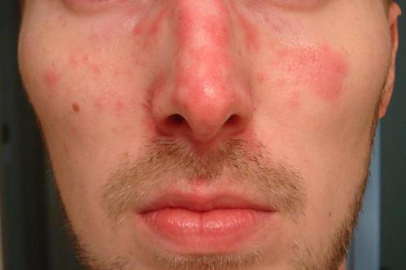 Hiv Skin Rash Early Symptoms It Treated – Fondos de Pantalla