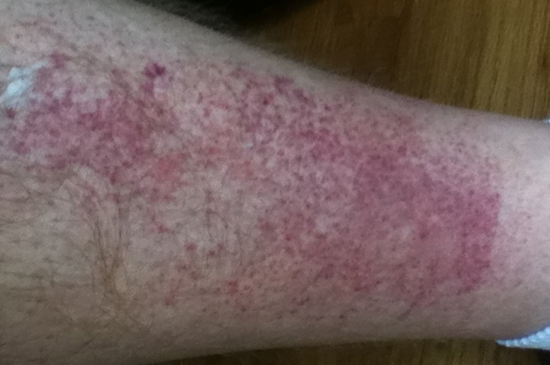 Rashes In Legs Pictures Photos